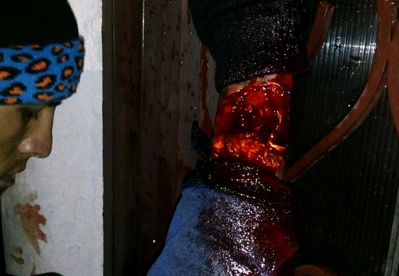 Escoria Recibe Machetazo en el Brazo al Meterse a Robar a un Hogar
