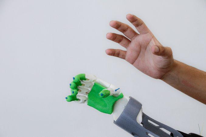 UAA Pondrá en Marcha Laboratorio de Prótesis 3D