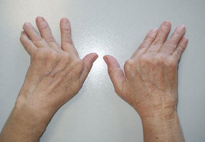 Llevar una Vida Sana Evita la Artritis Reumatoide
